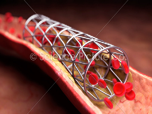 Imported stents capture 96
