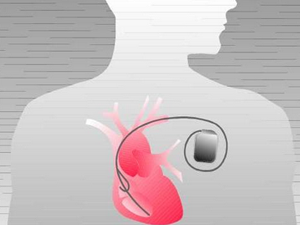 Cardiac-Implants-Devices_pi